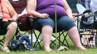 Long Term Obesity Is The Closest Way To Cause Liver Cancer: Study