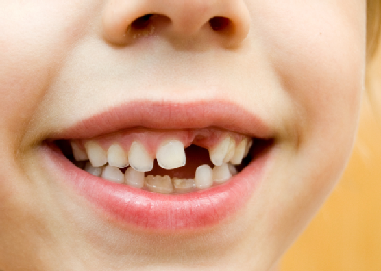Causes Of Crooked Teeth