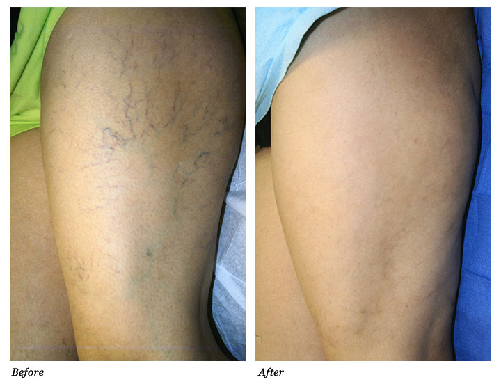 Spider Vein Treatment – What Is It All About?