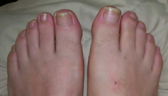 Laser Treatment - Is It Worth Trying In Case Of Toenail Fungus?