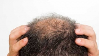What Are Your Hair Loss Causes & How Acupuncture Help In This?