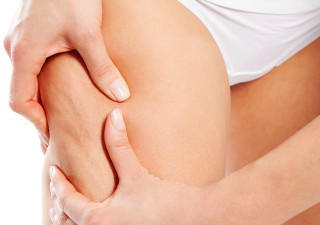 5 Effective Tips To Reduce Cellulite
