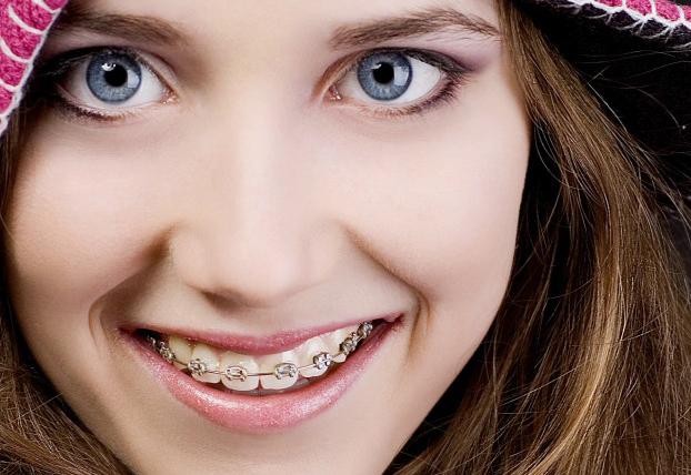WHAT ARE THE SIGNS THAT YOUR CHILD NEEDS BRACES