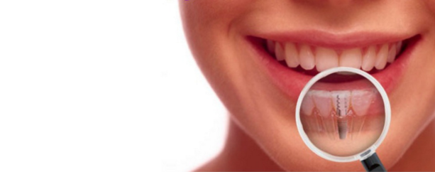 Remove The Misconceptions Surrounding Dental Implants