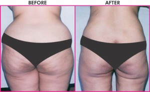 Different Kinds Of Body Sculpting Plastic Surgery Procedures