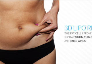 Rejuvenate Your Shape With 3d Liposuction Procedure