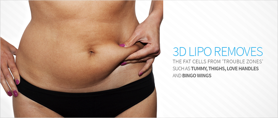 Rejuvenate Your Shape With 3d Liposuction Procedure