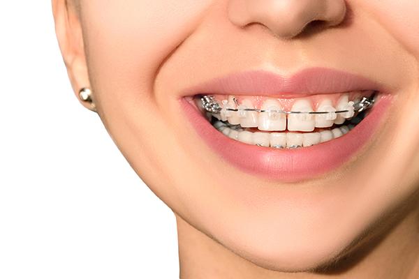 Orthodontist Options For Braces