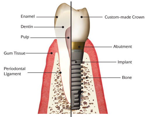 What Are The Benefits Of Getting Tooth Crown Replacement?