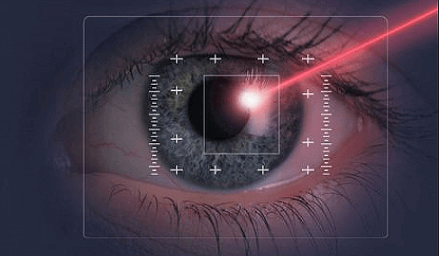Great Tips About Laser Eye Surgery