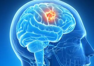 Best Brain Tumor surgeon in India