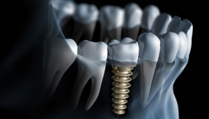 The Various Benefits Of Dental Implants